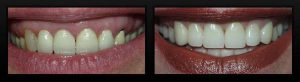 cosmetic periodontal surgery35d3