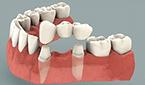 dentures bridges