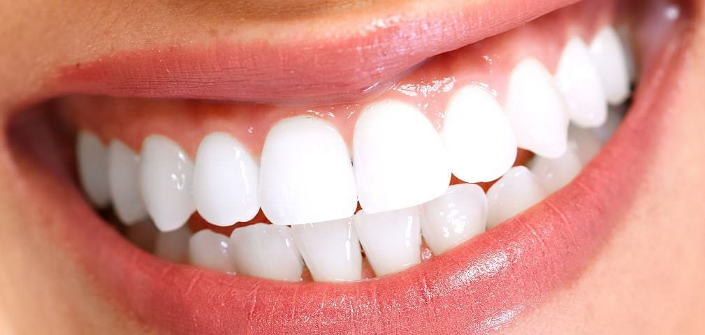 veneer smile Smile la 1009x480