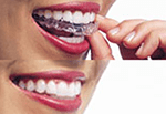 invisalign clear braces overa488